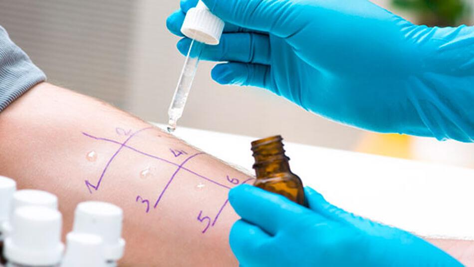 Panel de alergia a medicamentos - centro medico daniel alcides carrion arequipa
