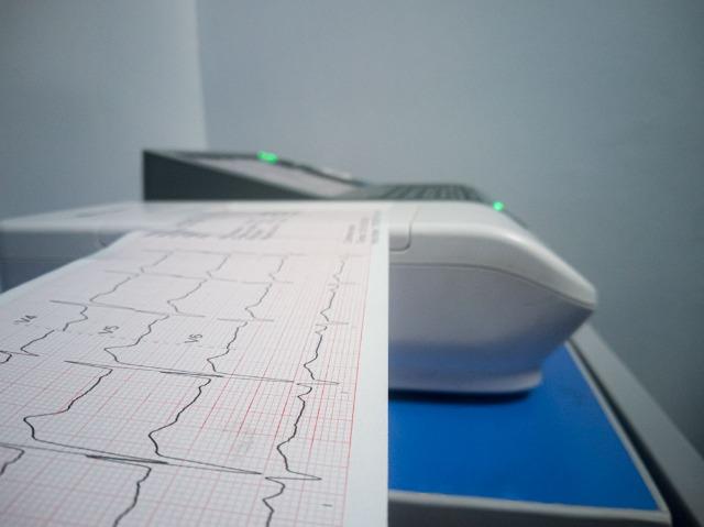 electrocardiograma - centro medico daniel alcides carrion arequipa