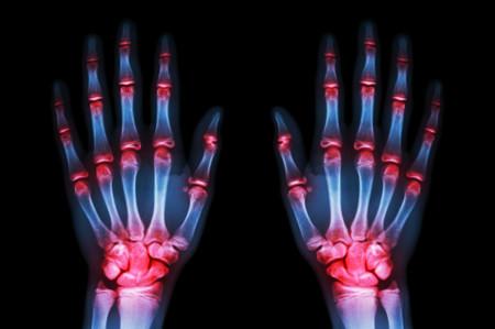 manos con artrosis