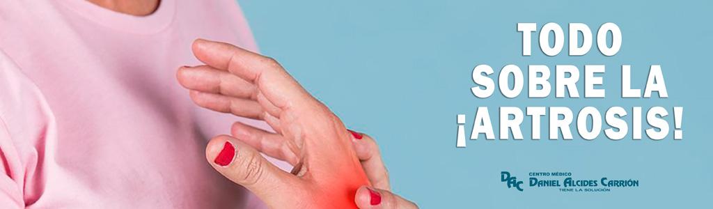 todo sobre la artrosis