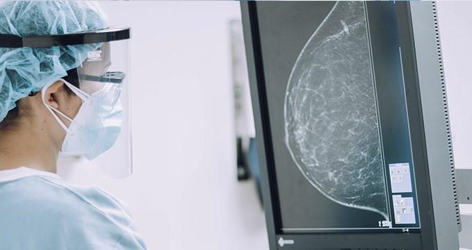 radiografia de mama